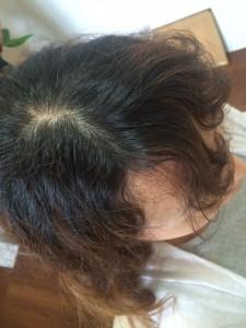 弱酸性縮毛矯正前の写真(その1